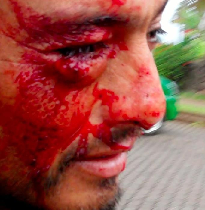Violento desalojo de Fuerzas Especiales en Rapa Nui deja al menos seis heridos